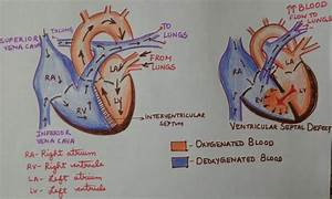 What Happens When Oxygenated And Deoxygenated Blood In The