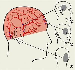 Боль в виске при гипертонии