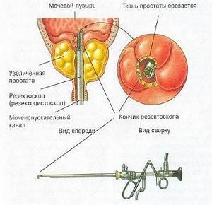 Лекарства из китая от простатита