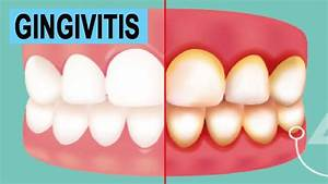 Home Remedies for Gingivitis | How to cure Gingivitis at ...