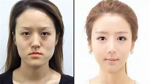 KOREAN TWINS UNRECOGNIZABLE AFTER PLASTIC SURGERY? - YouTube