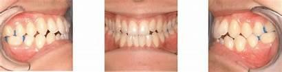 Before Class Malocclusion Treatment Bite Iii Open