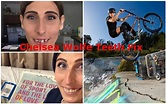 Chelsea Wolfe Teeth Fix, Before and After, Olympics, BMX ...