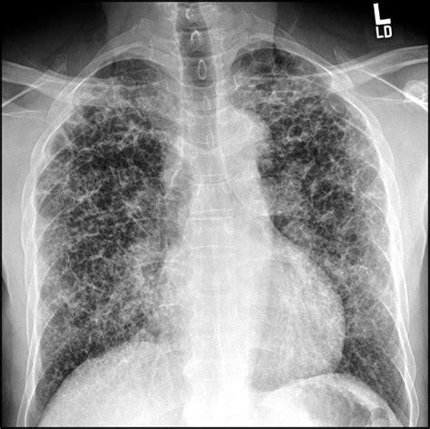 pulmonary langerhans cell histiocytosis  american