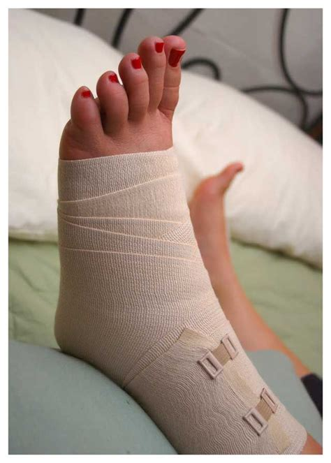 badly sprained ankle swollen ankles ankle ligaments