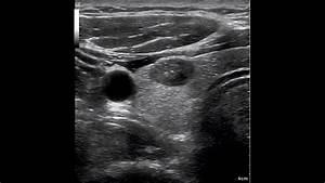 Breast Ultrasound: Ge Breast Ultrasound