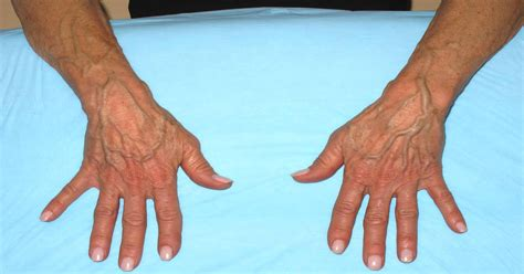 Sudden bulging veins in hands: Causes, symptoms, and treatment