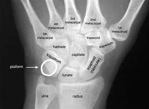Pin By Bone Disease On Bone Disease
