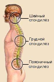Массаж при остеохондрозе поясничного отдела позвоночника симптомы и лечение