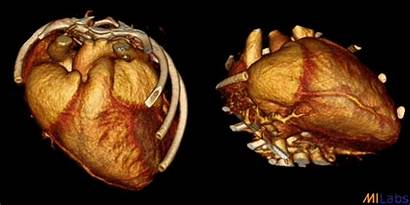 Ct Heart Imaging System Milabs Mouse Spect