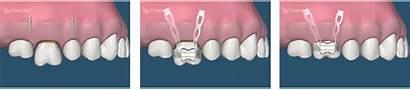 Implants Intrusion Molar Dental Orthodontic Teeth Implant