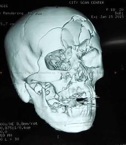 Боли в суставах при грыже шейного отдела позвоночника