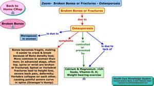 Nursing Concept Map Osteoporosis