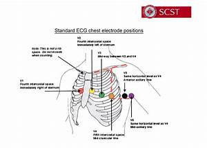 12-lead Ecg Monitoring With Easi Pdf