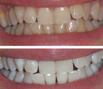 blanchiment dentaire martinique en centre esth 233 tique laser