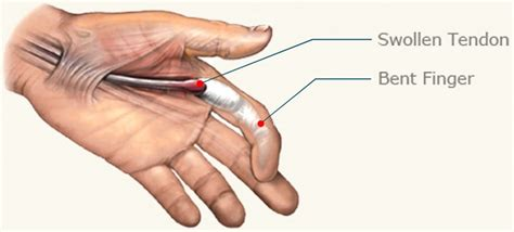 Trigger Finger Diagram by 8 Trigger Finger Treatment Home Remedies To Help You