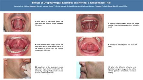 Best Selfsuck Cures For Snoring And Tongue Exercises That Ll Help