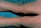 Rocky Mountain Spotted Fever - Symptoms, Complications ...