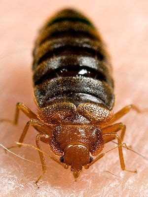 rid  bedbugs skin  beauty center everyday health