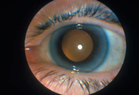 seeing lights in one eye eye problem pictures farsightedness nearsightedness