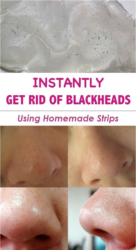 getting rid of a get rid of blackheads using strips timeless