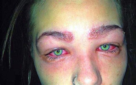 adolescente fica irreconhecivel apos ter reacao alergica