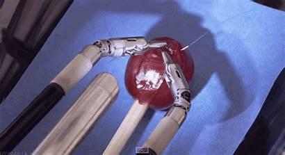 Grape Da Surgical System Surgery Human Robotics