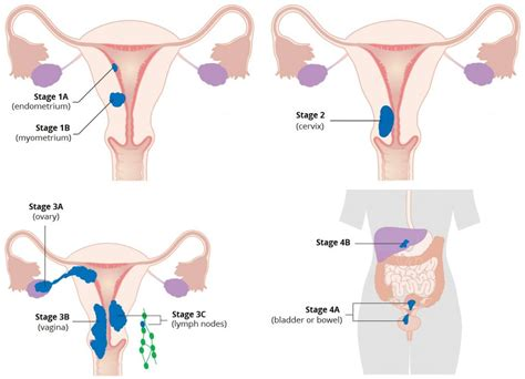 Endometrial Cancer - Risk Factors - Staging - Surgery