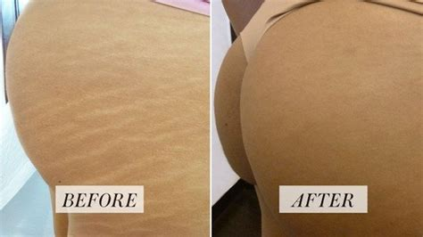 This Tattoo Artist Makes Stretch Marks Disappear