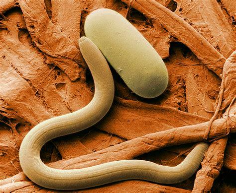 Nematoda - Nematodes - Roundworms - Animalia