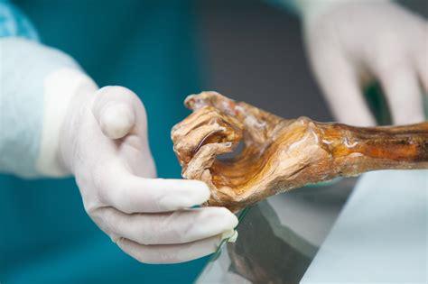 Anche Ötzi Aveva La Gastrite