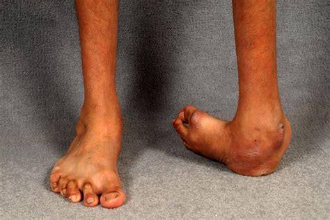 Club foot can be corrected. Clubfoot Can be Corrected Non-Surgically | United States ...