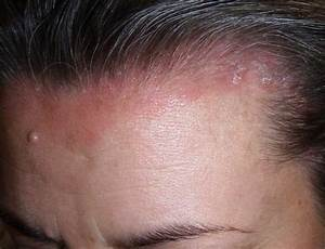 Mild scalp psoriasis pictures | Symptoms and pictures