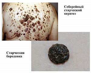 Средства для удаления бородавок жидким азотом