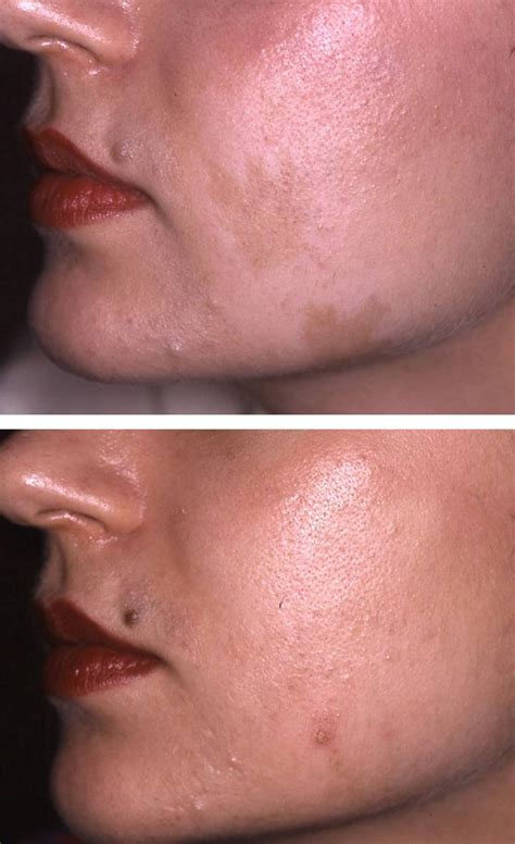 Pigmentation Removal - Ada Aesthetic Medicine