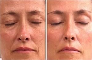 Маска для лица питательная в домашних условиях для сухой кожи от морщин