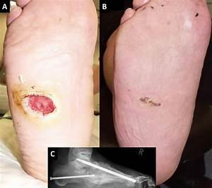Glassplitter Im Fuß : patienteninformationen zum diabetischen fu syndrom my medibook ~ A.2002-acura-tl-radio.info Haus und Dekorationen