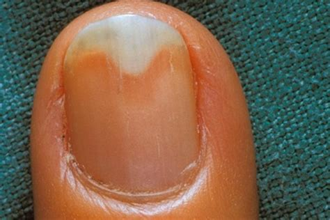 receding nail bed onycholysis symptoms causes pictures treatment