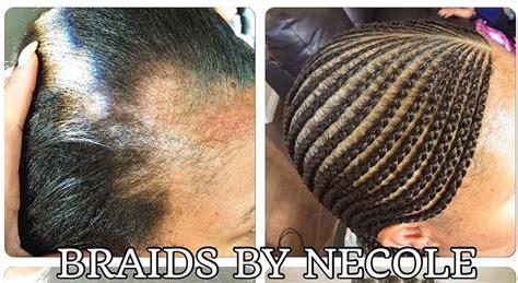 extraordinary alopecia camouflage cornrows  braids