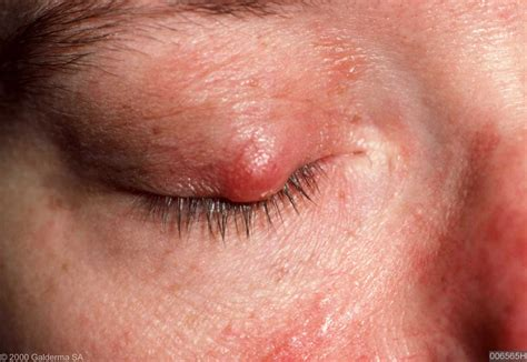 ophthalmo rosacea rosacea blog