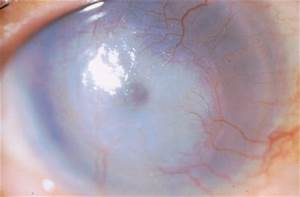 The Varicella-Zoster Paradox: What It Means for Eye M.D.s - American Academy of Ophthalmology  Chickenpox Vaccine Chickenpox