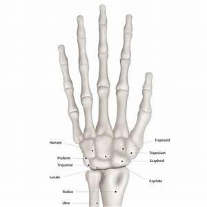 Broken Or Sprained Wrist