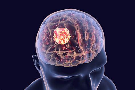 glioblastoma treatment  nj  nj brain physician igea