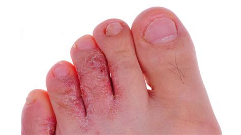 Athlete's Foot Causes, Symptoms, And Diagnosis. Technical Schools In Philadelphia Pa. Miami Limo Service Airport Lottery Cancer Ca. Physical Therapists Schools Bank Ira Rates. How To Apply For Scholarships For College Online. Viceroy Residences Snowmass The Beach Comber. Salesforce Consulting Rates P Touch 2500pc. Financial Management Services. Lead Generation Business For Sale