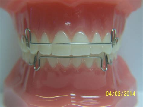 retentionretainers general dentist orthodontics