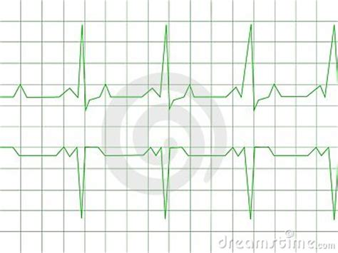 normal heart rhythm royalty  stock images image