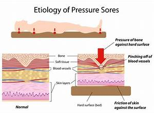 pressure ulcers bed sores health life media With coccyx bed sore