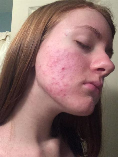 accutane day  accutane isotretinoin logs  lydiatank acneorg community