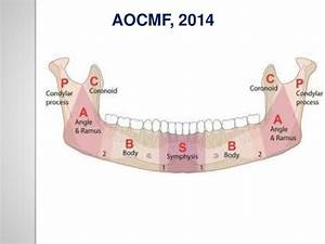 Classification Of Mandible Fracture