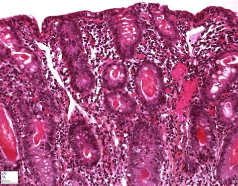 Cystic Fibrosis Humpathcom Human Pathology